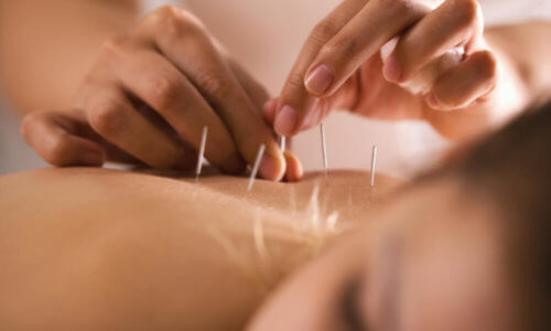 Natural and Alternative Therapy; Woman Having Acupuncture Treatment