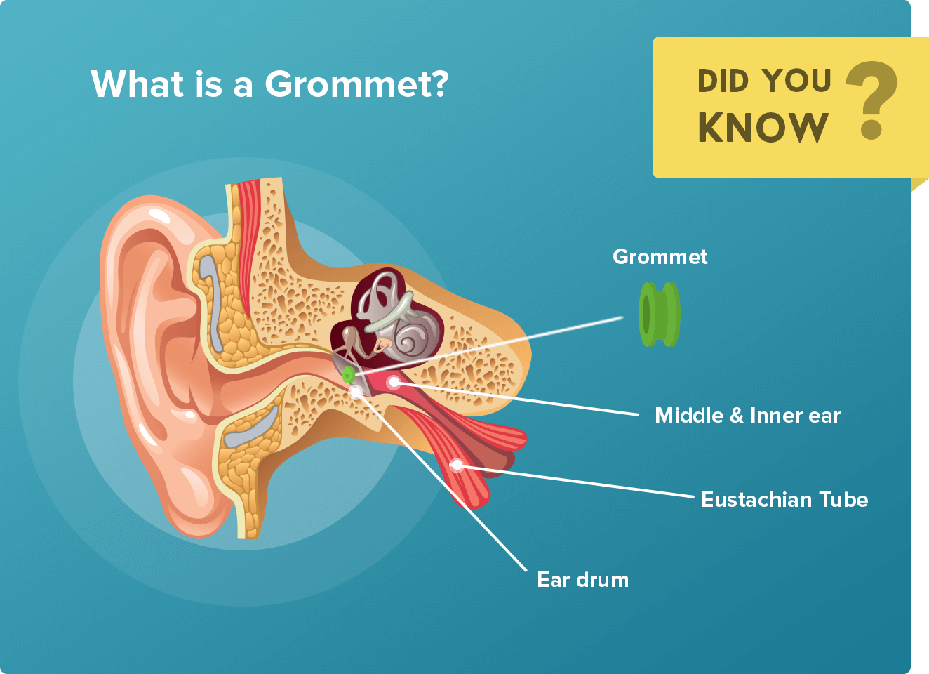 What is a Grommet?