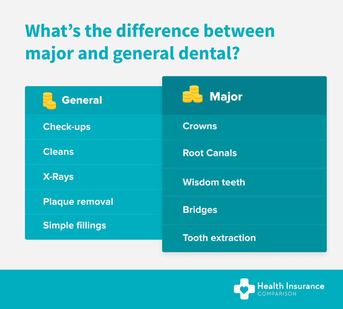 Table showing the difference between general and major dental health insurance extras.